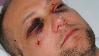 Паланчанец претепал Црногорец во Скопје