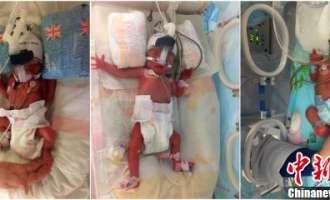 Кинеска роди близначки, шест дена откако доби син