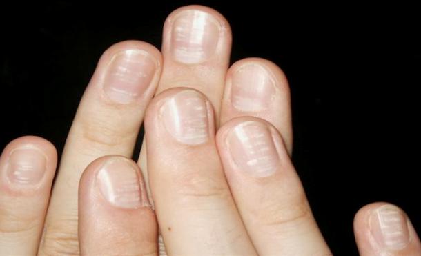 Што значат белите дамки на ноктите