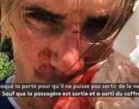 Велосипедист претепан со бејзбол палка за време на тренинг во Париз