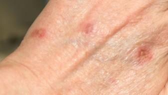 Зголемен бројот на  заболени со рак на кожата