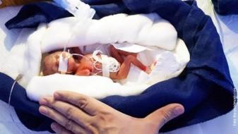 Бебето што тежеше само 400 грама се избори за живот